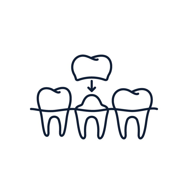 Albany Dentist Smiles Dental Crowns