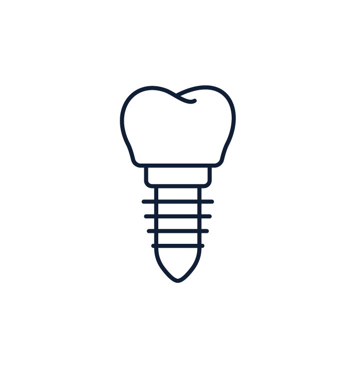 Albany Dentist Smiles Dental Implants